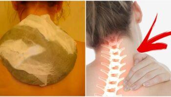 Як власноруч зробити дієву мазь від шийного остеохондрозу